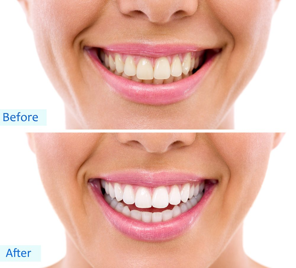 The Truth About Does Teeth Whitening Strips Work