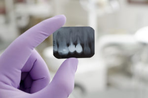 purple gloves root canal xray