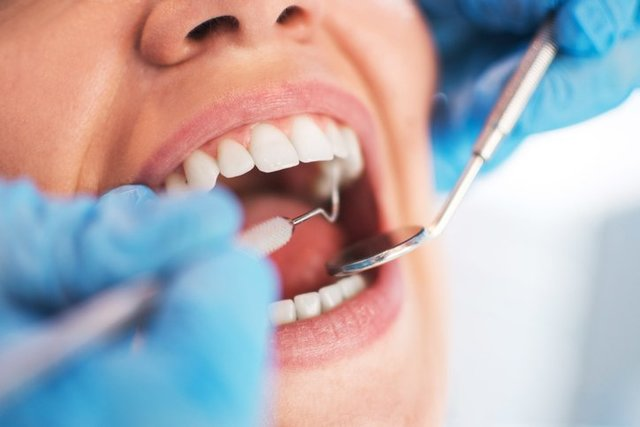 dental cleaning by hygienist