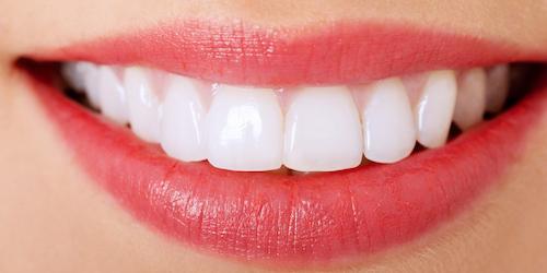 Porcelain Veneers smile with pink lips