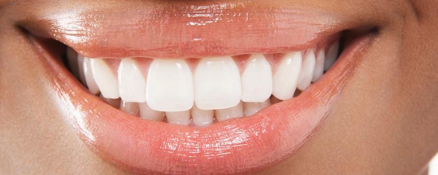 Closeup of Teeth Whitening