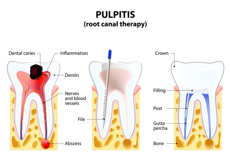 Process of a root canal treatment